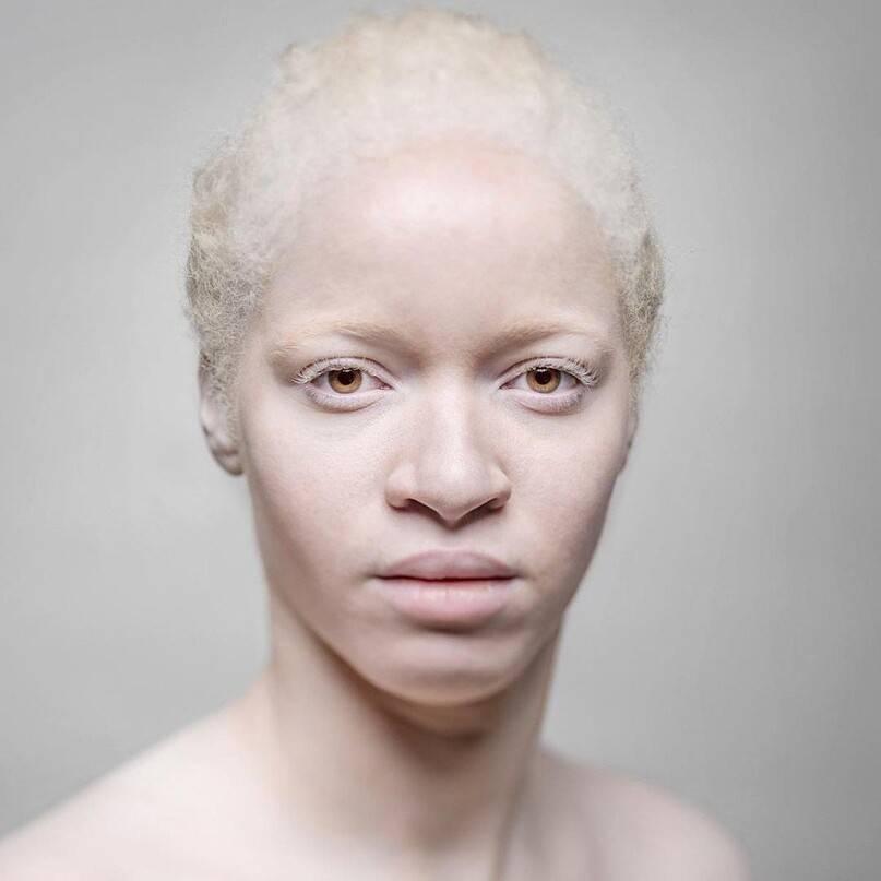 Кто такие люди-альбиносы? почему люди рождаются альбиносами? :: syl.ru