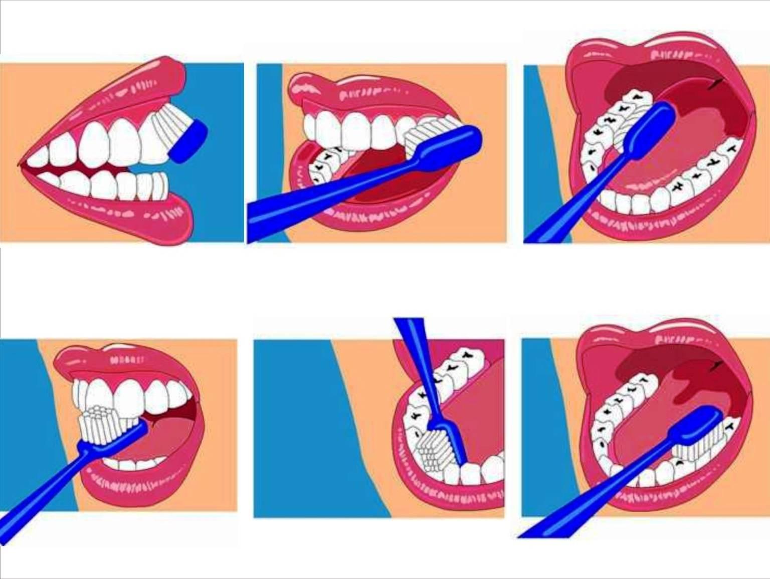Правильная чистка зубов: техника, схема, полезные советы
