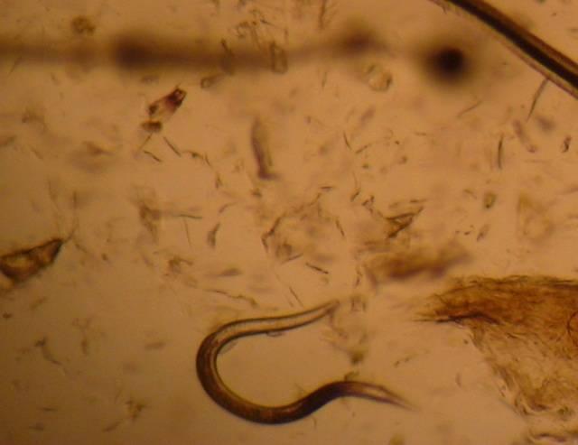 Можно ли заразиться аскаридами от собаки человеку - все про паразитов