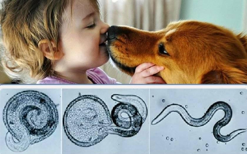Можно ли заразиться от собаки глистами: через слюну и близкий контакт, профилактика