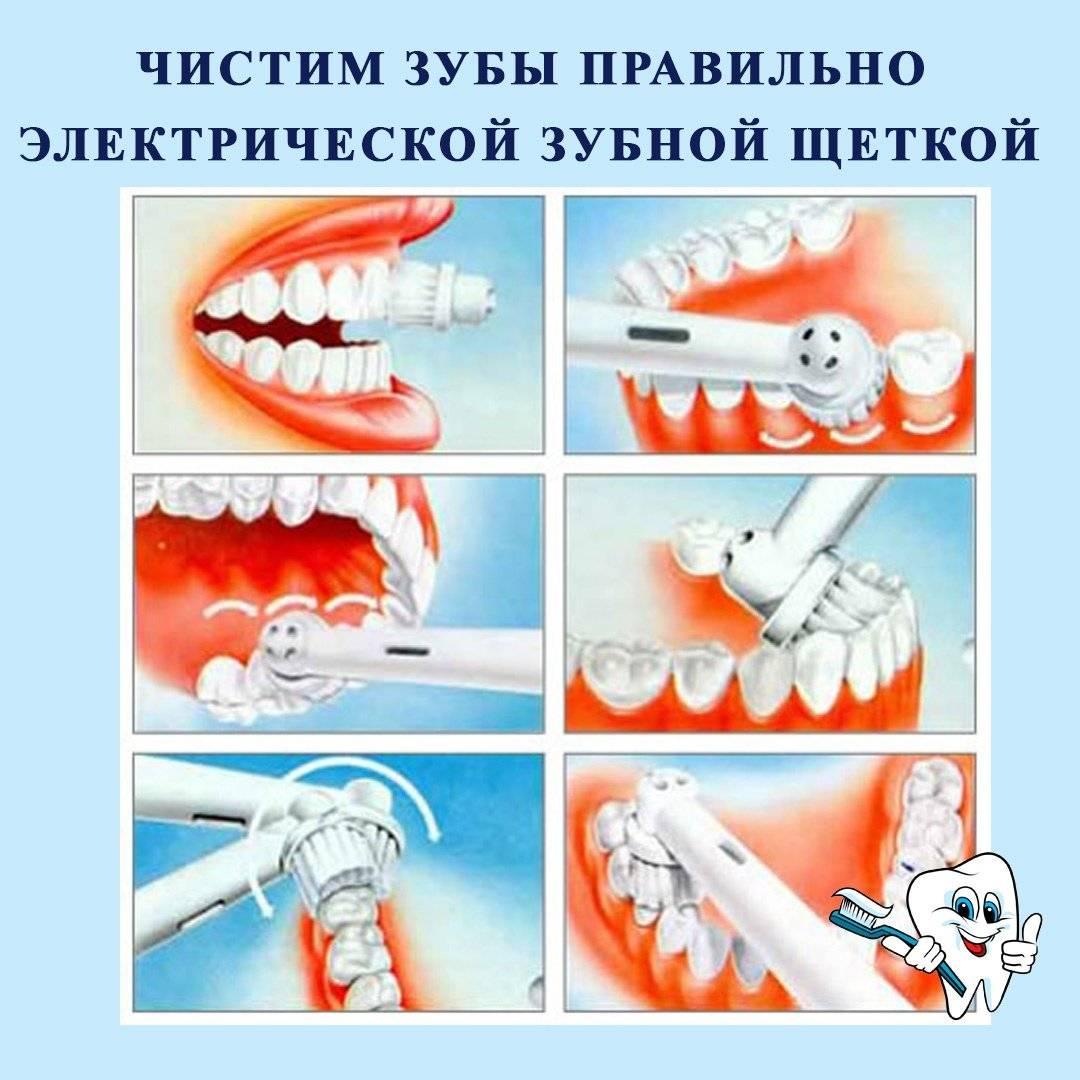 Как почистить зубы кошке в домашних условиях