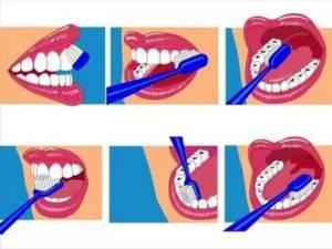 Как проводят чистку зубов для собак с помощью ультразвука без наркоза