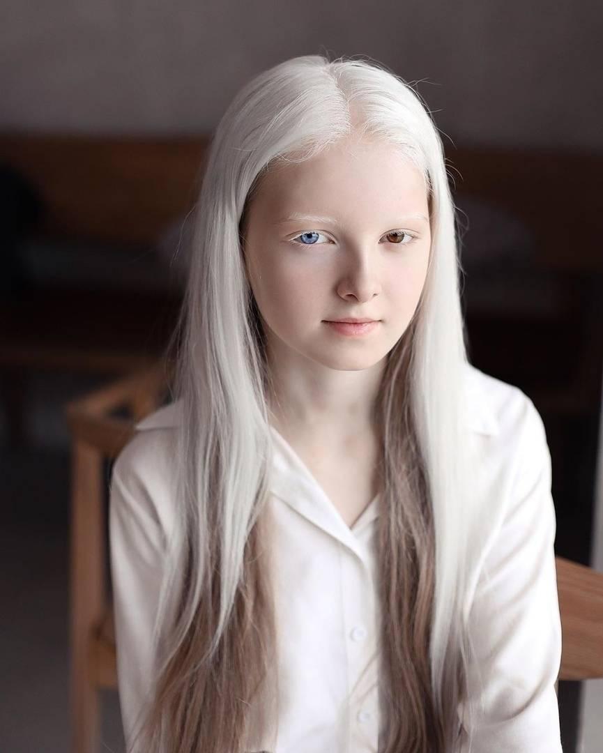 Кто такие люди-альбиносы? почему люди рождаются альбиносами?