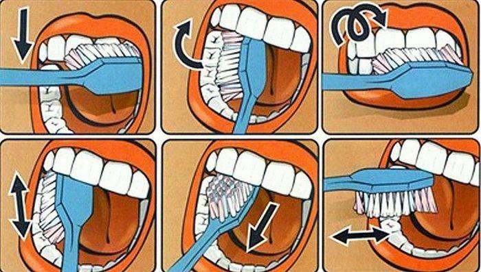 Зубной камень у собак зубной камень у собак