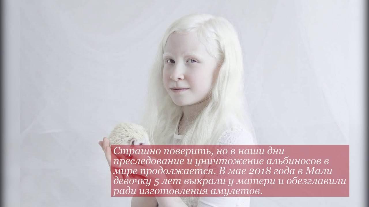 Доберман: полное описание породы, характер, условия содержания