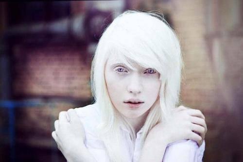 Красивые животные альбиносы фото подборка   science debate