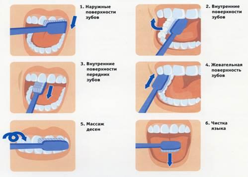 Бывает ли у собак зубной камень и можно ли избавиться от него в домашних условиях? зубной камень у собак: как почистить зубы