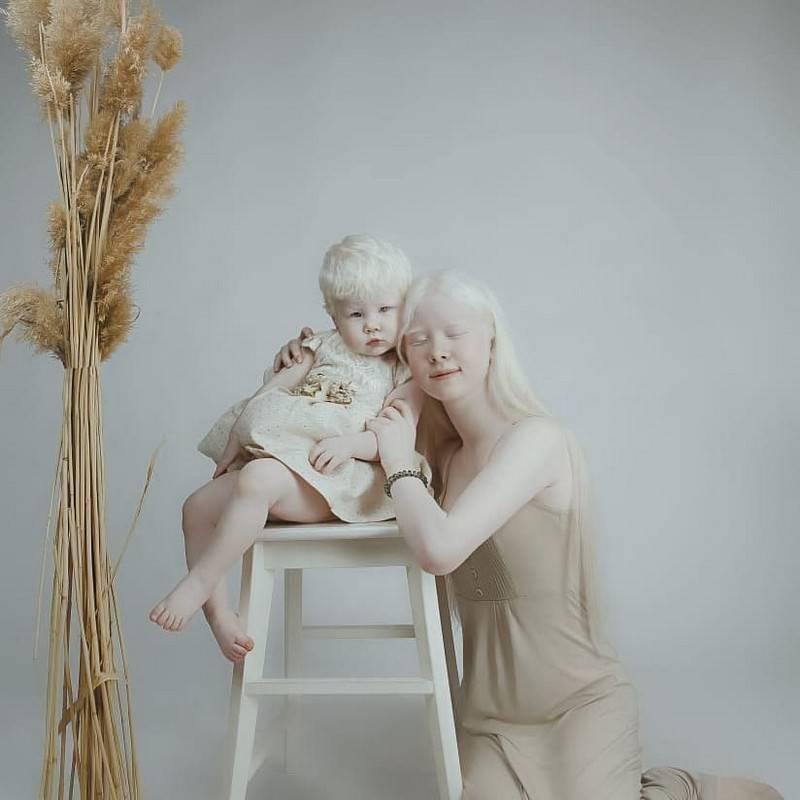 Альбиносы, факты и вымыслы.