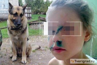 Что делать, если собака напала на человека на частной территории?