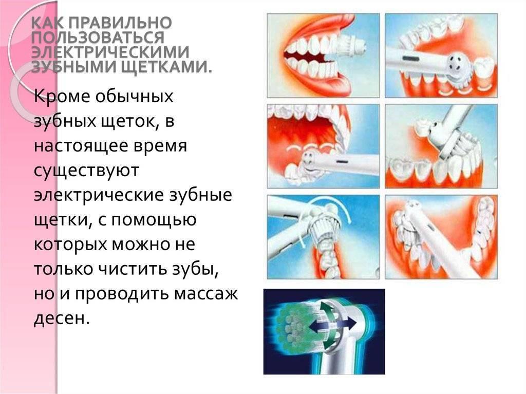 Легкий уход за зубами. как правильно чистить электрической щеткой?