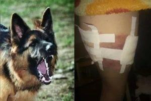 О чем предупреждают приметы, если укусила собака
