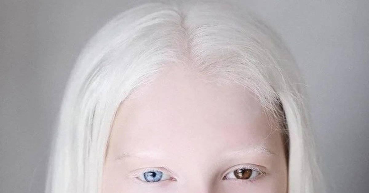 Кот альбинос: правила особого ухода   medeponim.ru