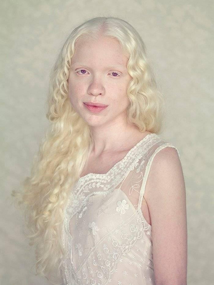 Альбиносы, факты и вымыслы.   скептон