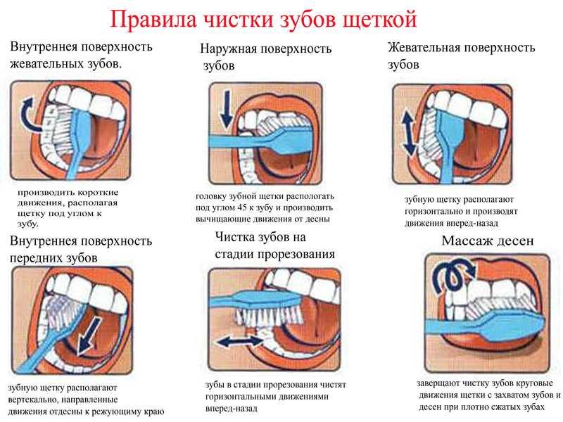 Как правильно чистить зубы электрической щеткой: советы - много зубов